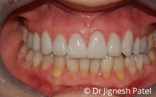 After - confidentalclinic